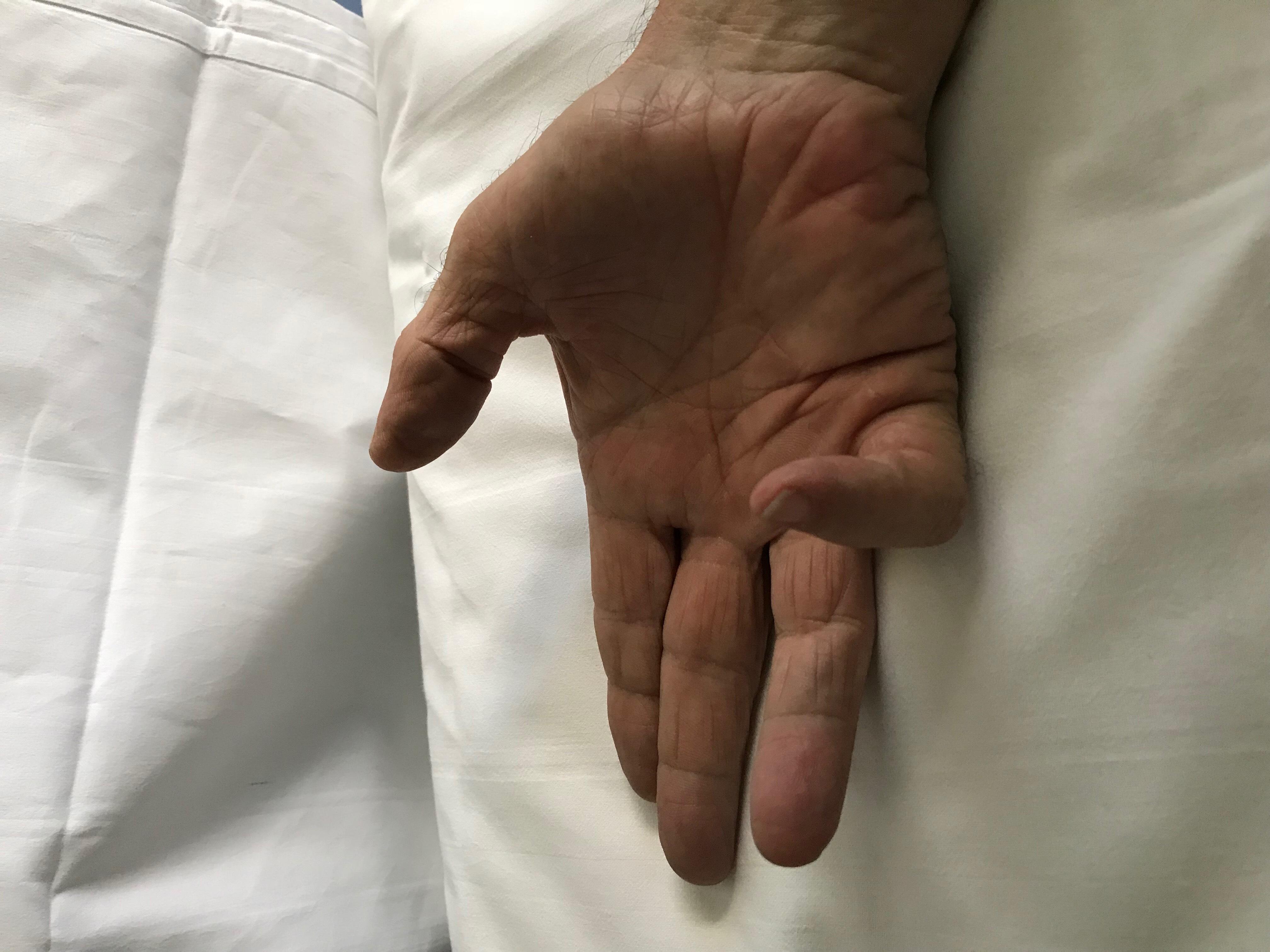 Dr. Fernando Aranda - Especialista en cirugía de la mano